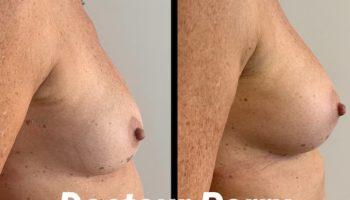augmentation-mammaire-prothese-ba-2