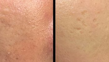 cicatrices-acne-visage-ba