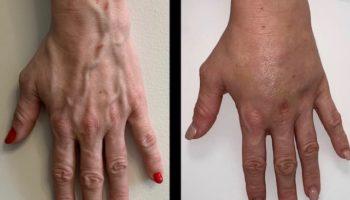 lipofilling-mains-ba